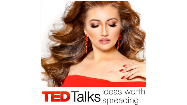 miss-world-america-washington-shree-saini-invited-by-tedx-talk-on-healthy-heart-and-emotional-fitness