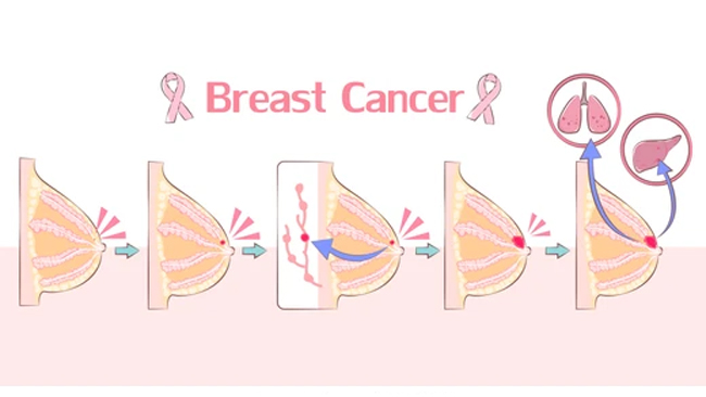breast-cancer-awareness-month-next-generation-treatment-for-advanced-breast-cancer